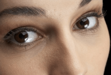 under eye wrinkles