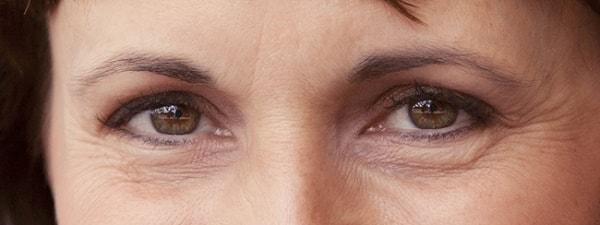 Premature under eyes wrinkles