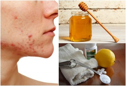 Get Rid Of Cystic Acne