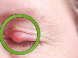 How to Get Rid of Pimple on Eyelid