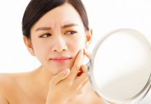 7 Habits of Everyday Life to Avoid Acne