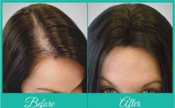 Hair Restoration Techniques