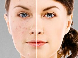 How Vitamin C Serum Fades Dark Spots