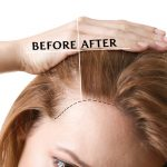Cost of FUE Hair Transplants Around USA